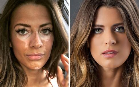 Модель с редким заболеванием кожи показала лицо без макияжа