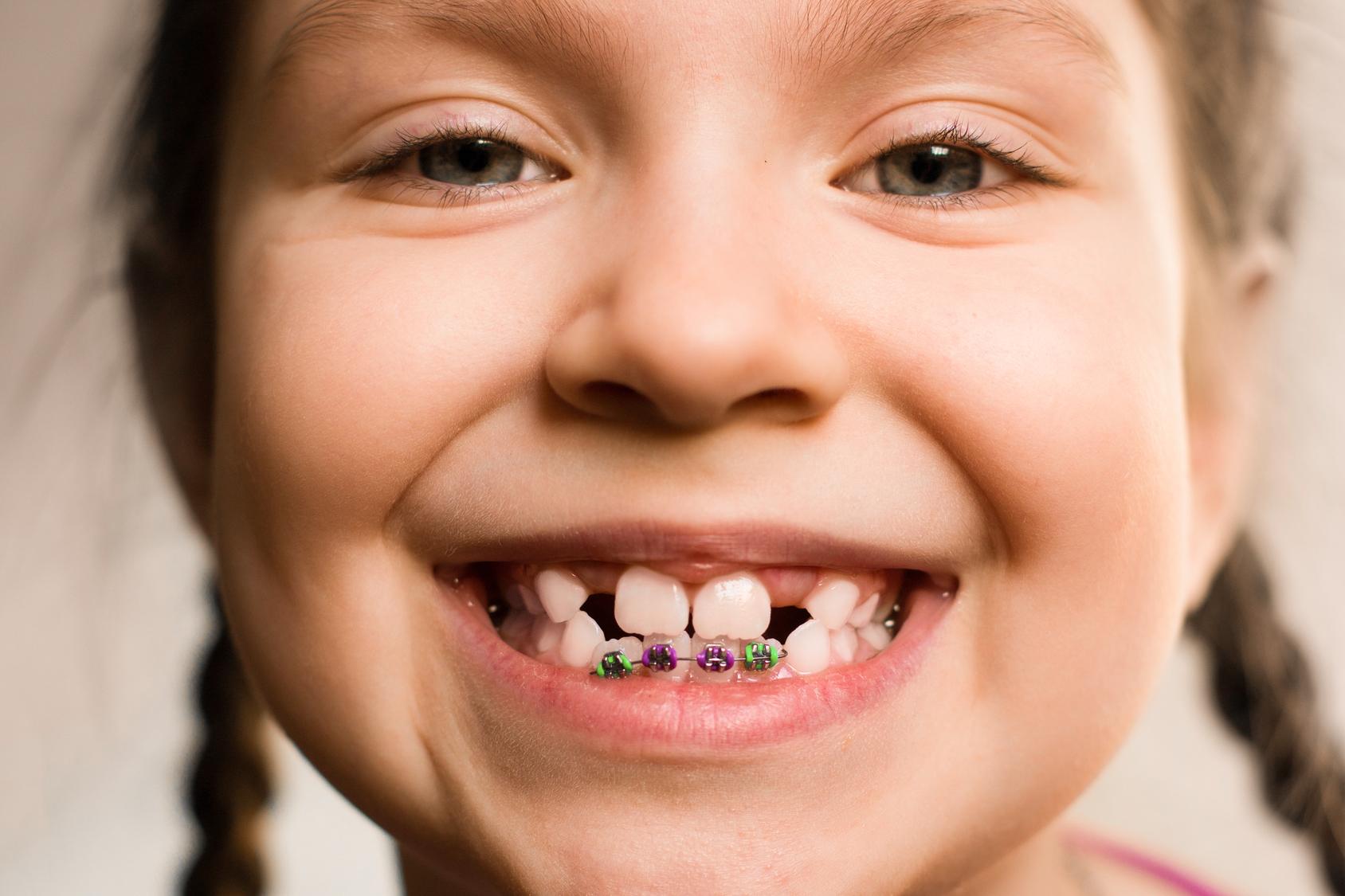 Умный уход за зубами