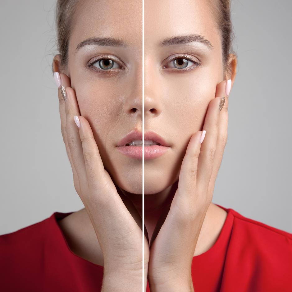 Простые техники для красивого овала лица | Модные тренды | Красота