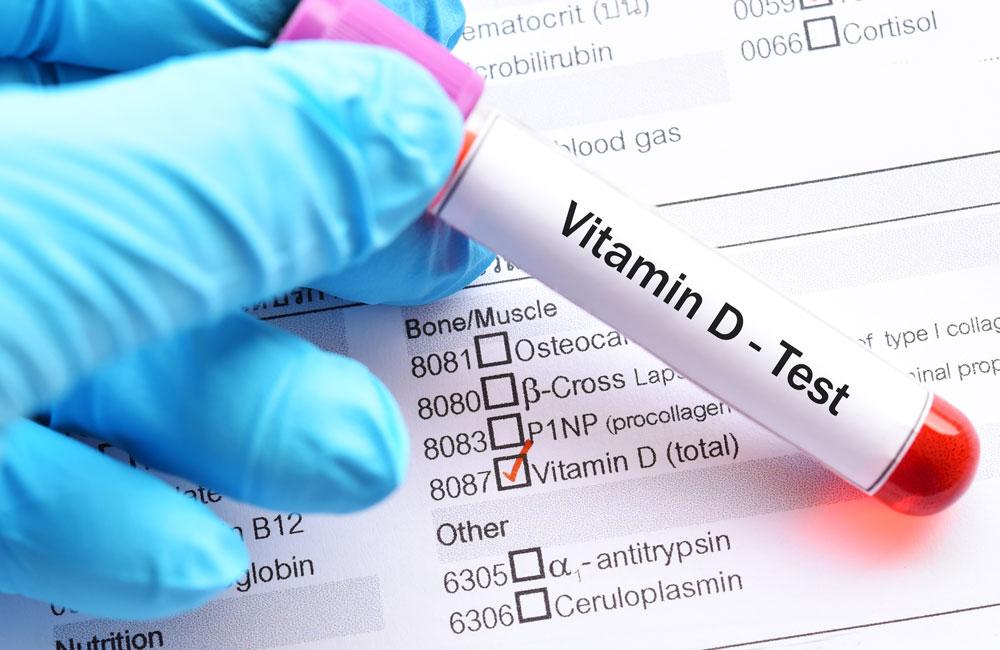 vitamin-D-test-total